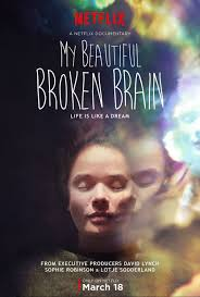 My Beautiful Broken Brain vostfr
