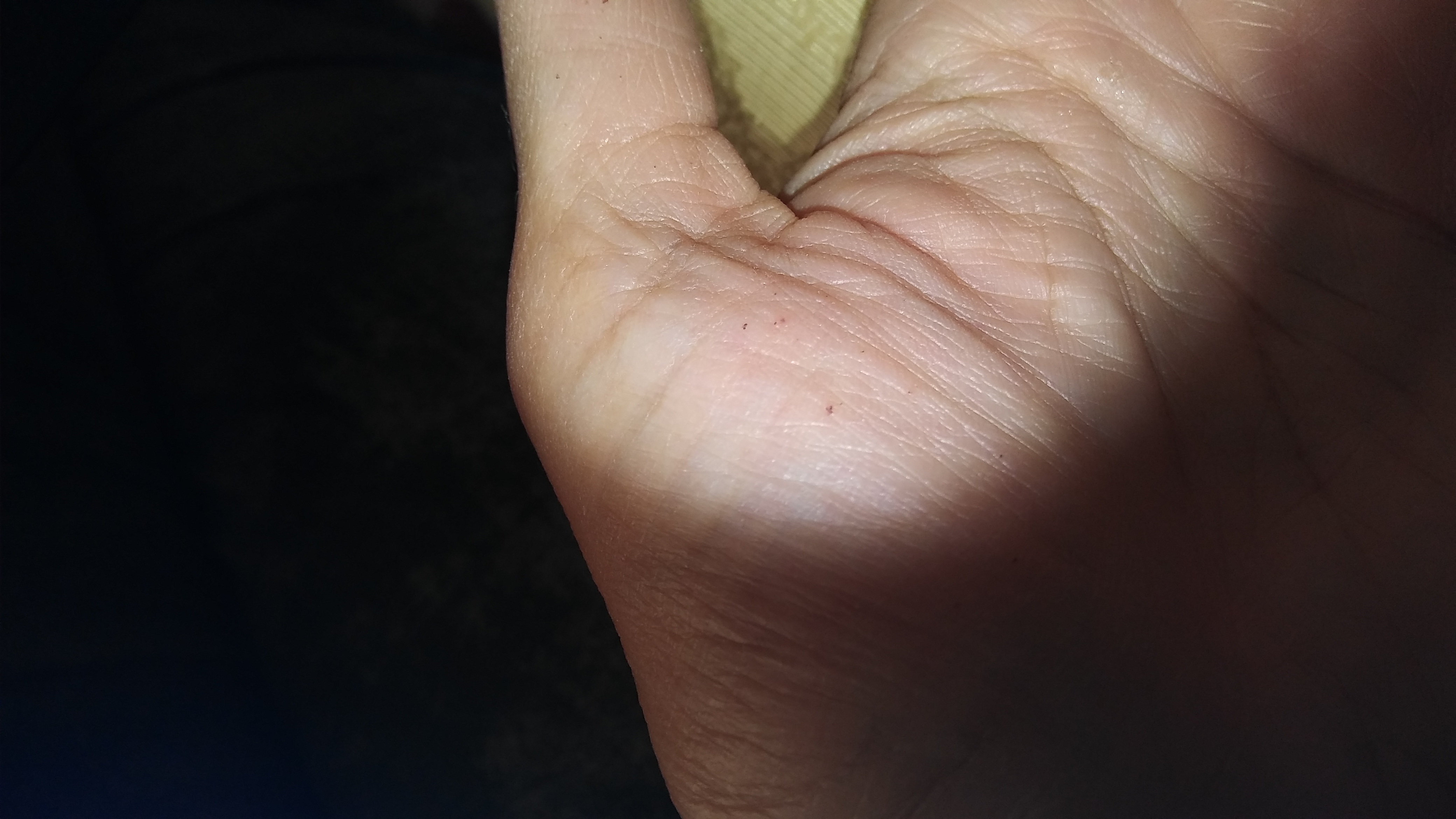 Red-brown speckles on palm of hands and fingers | Science for ME